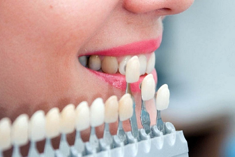 Dental Veneer: Everything You Need To Know